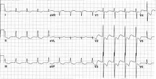 Non St Segment Elevation Myocardial Infarction An Overview
