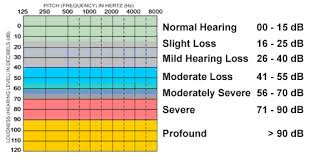 Hearing Chart Diseases And Conditions Identified In Children Minnesota