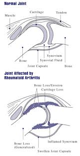 Pathophysiology Of Osteoarthritis In Flow Chart Rheumatoid Arthritis Wikipedia