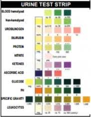 Urine Dipstick Chart Uk Urine Dipsticks Biomedx