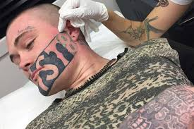 Teen Is Keeping His Devast8 Facial Tattoo After All