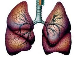 Дыхательная система Туберкулез внутригрудных лимфатических узлов