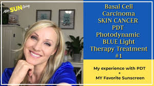 Levulan Blue Light Treatment Pdt Photodynamic Blue Light Treatment For Skin Cancer Basal Cell Carcinoma Very Detailed Ep04