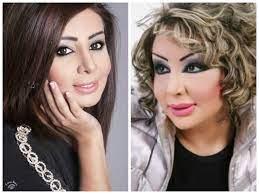 شيماء علي قبل وبعد عمليات التجميل - أنوثة - Ounousa | موقع الموضة والجمال  للمرأة العربية