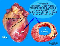 heart attack pathology in men and women anatomy causes picture of myocardial infarction caused by heart attack