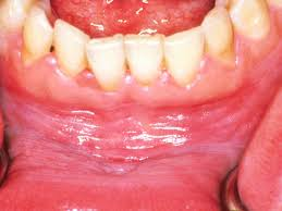 what does it mean when you have white gums some conditions can make the gums appear white the color change may occur in one part of the mouth or over the