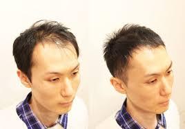 薄毛髪型実録前髪がかなり薄くなってしまっても薄毛をカバーできる