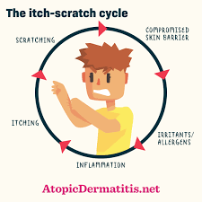 Reducing the Itch-Scratch Cycle | AtopicDermatitis.net