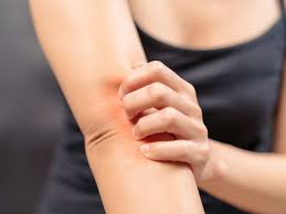 can menopause cause itching tips for relief many people experience itchiness during menopause estrogen plays a vital role in skin health and changes in