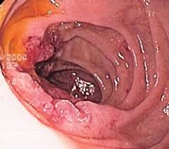 Cabinet Medical Endoscopie chirurgie galati
