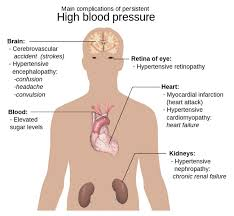 symptoms of chronic high blood pressure