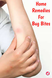 8 Effective Home Remedies for Bug Bites