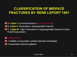 Le Fort Fracture Le Fort Fractures