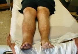 「深部静脈血栓症」の画像検索結果
