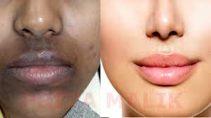 How To Remove Dark Black patches, Dark Spots,Hyper pigmentation ...