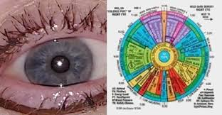 Myth Or Fact Can Iridology Detect Systemic Disease