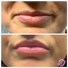 botox lip flip everything you need to