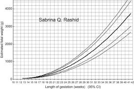 Growth Profile By Estimated Fetal Weights In Bangladesh