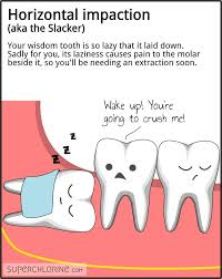 your wisdom tooth is so lazy that it laid down sadly for you its laziness causes pain to the molar beside it so you ll be needing an extraction