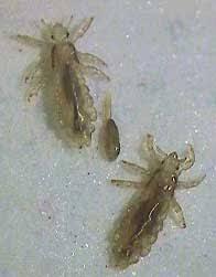 Managing Head Lice Safely No Nit Policies