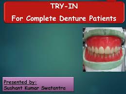 Try In Of Complete Dentures