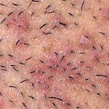 Como remover pelos encravados sem danificar a pele