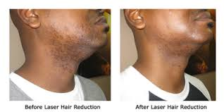 because of gray hairs client continues to have issues with folliculitis and discoloration in some areas 1 how does altus coolglide laser hair