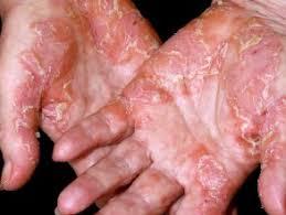 Treatment Of Psoriasis Dermnet Nz