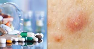 Correct And Safe Dose For Accutane Isotretinoin Treatment