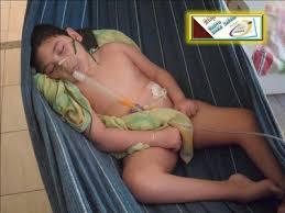 Resultado de imagem para criança com microcefalia