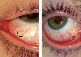 conjunctivitis with a pseudomembrane