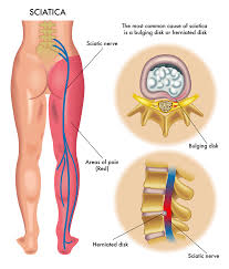 sciatica harvard health