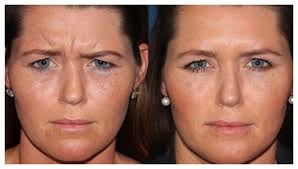 fine lines and wrinkles treatment san
