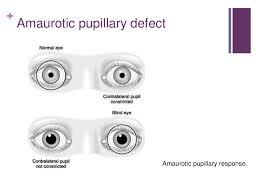 Amaurotic Light Reflex Pupillary Defect