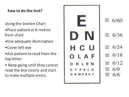 Eyes Vision Eye Vision 660