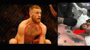 Conor Mcgregor Removed His Tattoo