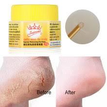 <b>dry</b> foot skin