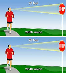 Laser Eye Treatment Success Is It Right For You Infobarrel