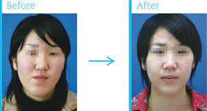 顎 変形 症 手術