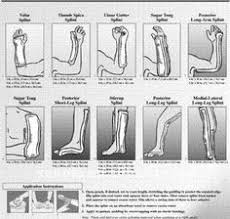 Ortho Glass Splinting Manual Pdf