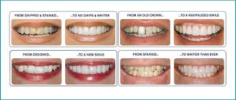 Dental Veneers Guide On Dental Veneer Prices Risks Photos