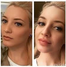 image result for lip filler before after