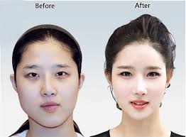anese mage at home bring back that firm uplifted face korean surgerykorean plastic surgerybefore after photomakeup
