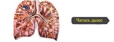 Лечебный пневмоторакс tuberkulez simptom ru Читать далее