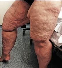 Image result for thigh fat