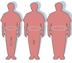 چاقی - ویکیپدیا، دانشنامهٔ آزاد