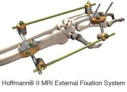 external fixator hand wrist care with external fixation restoration orthopaedics