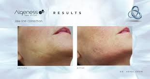 Algeness - A more sculpted jawline thanks to Algeness fillers | Facebook