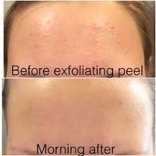 it works exfoliating peel before and after it works exfoliating peel lets get started message me for more