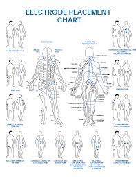 Tens Machine Pad Placement Chart Tens Unit Placement Chart For Sciatica Www
